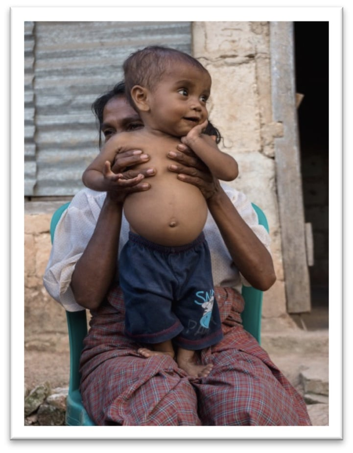 a child suffering from malnutrition propped on the lap of a woman